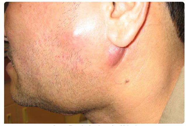 Опухшие лимфатические железы при вич