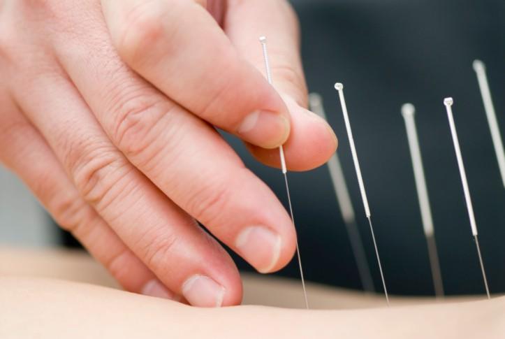 Показания и противопоказания к рефлексотерапии